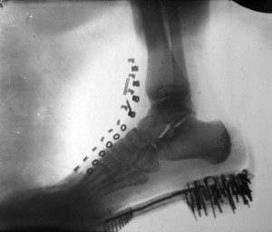 Shadowgraph of a human foot in a shoe.Tesla obtained the image in 1896 with x-rays generated by his own vacuum tube, similar to Lenard's tube, at a distance of 8 feet